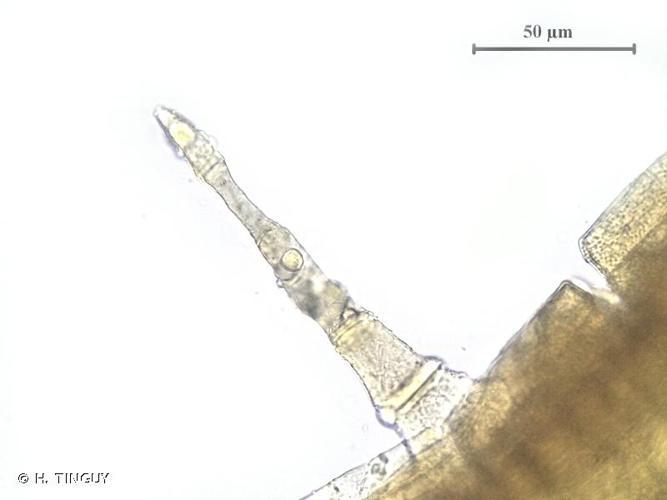<i>Orthotrichum stramineum</i> Hornsch. ex Brid., 1827 © H. TINGUY